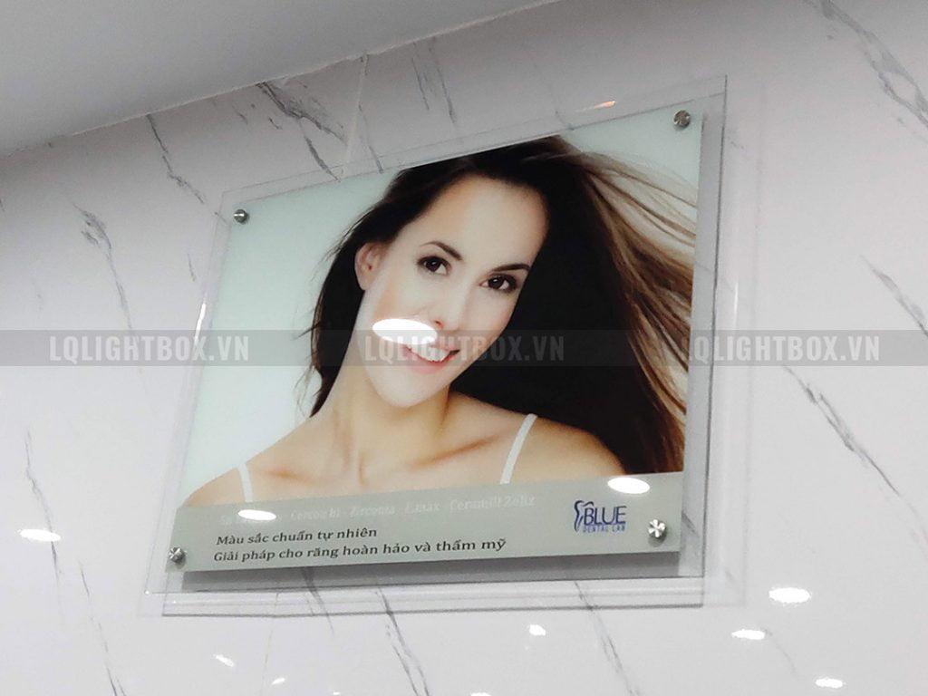hộp đèn lightbox thủy tinh dùng trong phòng khám nha khoa răng miệng